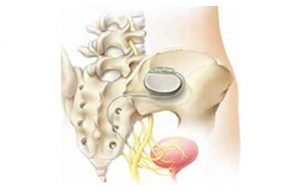 Interstim Sacral Nerve Stimulation